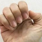 Co oznaczają zmiany na paznokciach?