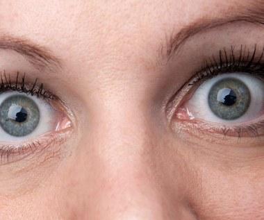 Co powoduje wytrzeszcz oczu?