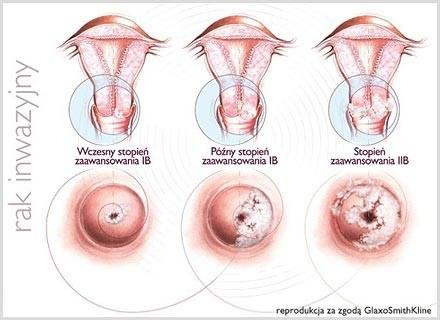 Co roku u około 500 000 kobiet na świecie stwierdza się raka szyjki macicy. /materiały promocyjne