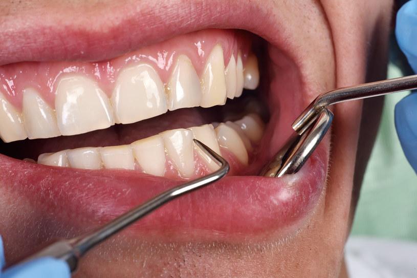 Co się stało w trakcie wizyty dentystycznej? /123RF/PICSEL