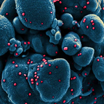 Co sprawia, że przebieg choroby COVID-19 może być cięższy?