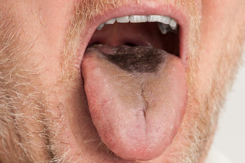 Co sygnalizuje nam brązowy nalot na języku? /123RF/PICSEL