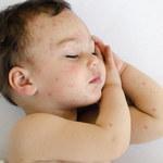 Co to za wysypka? Pediatra wyjaśnia