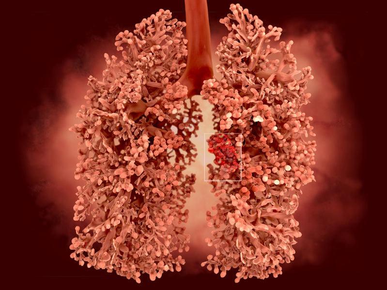 Co trzeci mężczyzna umierający na nowotwór w Polsce miał raka płuc /123RF/PICSEL