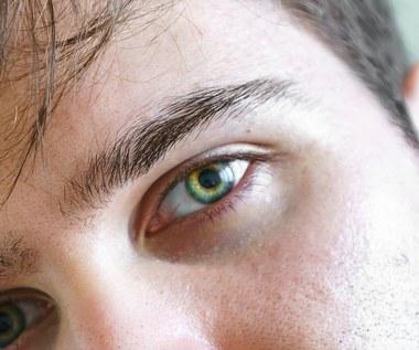 Co twoje oczy mogą powiedzieć ci o twoim zdrowiu?