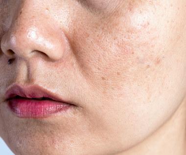 Co zrobić, żeby twarz się nie świeciła?