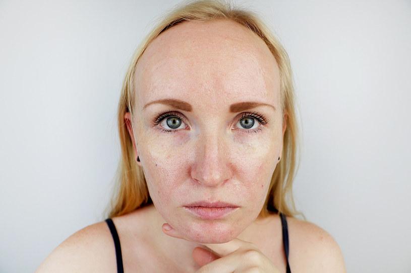 Co zrobić, żeby twarz się nie świeciła /123RF/PICSEL