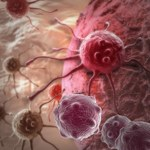 Codzienne nawyki, które zwiększają ryzyko nowotworu