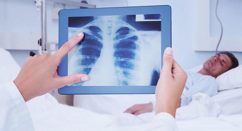 COVID-19 atakuje całe płuca, czego konsekwencje są poważne /123RF/PICSEL