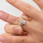 Czego objawem są opuchnięte palce u rąk?