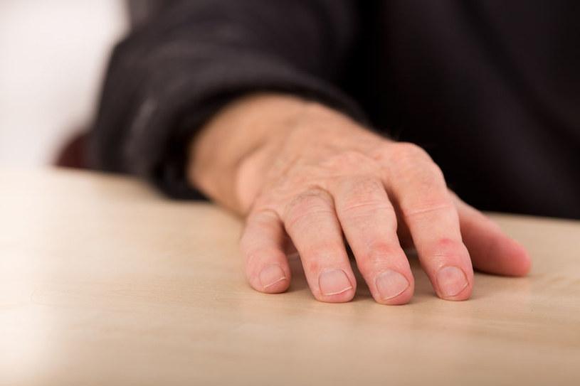 Czego objawem są pałeczkowate palce? /©123RF/PICSEL