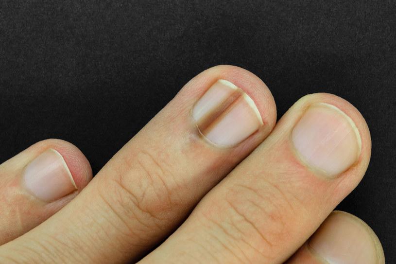 Czerniak może pojawić się również pod paznokciami /123RF/PICSEL