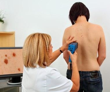 Czerniak - najbardziej zdradliwy nowotwór młodych ludzi