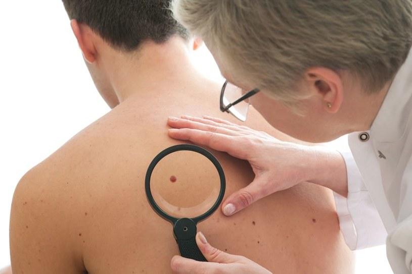Czerniak to niezwykle niebezpieczny nowotwór skóry. Często pozornie wygląda jak kolejny pieprzyk /123RF/PICSEL