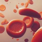 Czerwienica prawdziwa: Przyczyny, objawy i leczenie