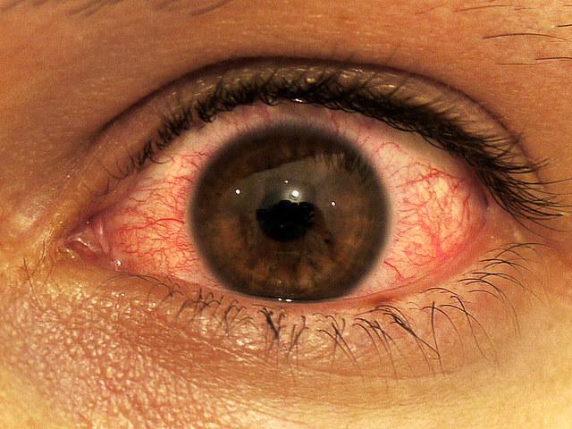 czerwone oczy /© Photogenica