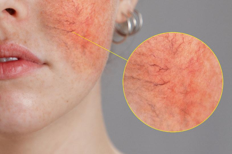 Czerwone plamy na skórze są wynikiem rozszerzonych ścian naczyń krwionośnych /123RF/PICSEL