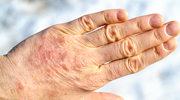 Częsta dezynfekcja a zapalenie skóry