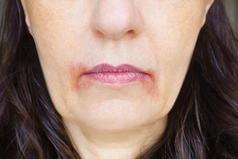 Częste problemy ze skórą - o czym mogą świadczyć? /©123RF/PICSEL