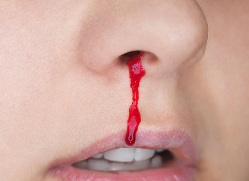 Często masz krwawienia z nosa? Możesz temu zaradzić /123RF/PICSEL