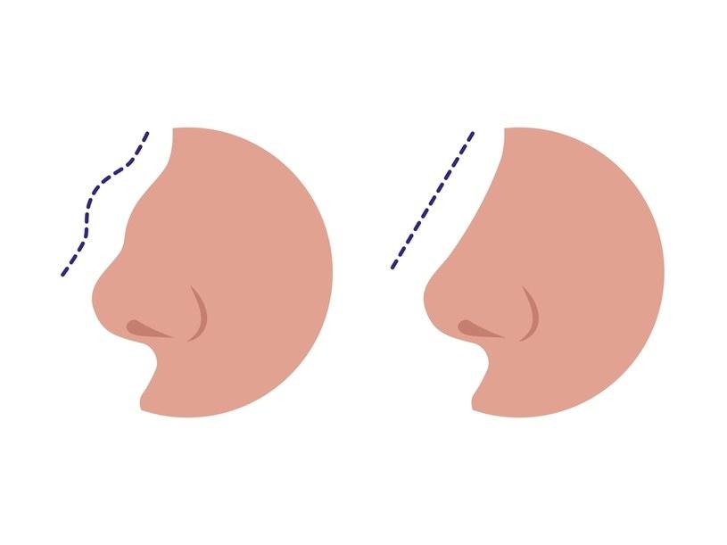 Często nos wymaga korekty /123RF/PICSEL