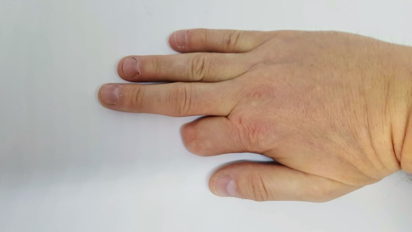 Często po wybuchu petardy trzeba amputować palec lub kończynę /123RF/PICSEL