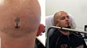 Czip jak tatuaż: Testy już trwają!