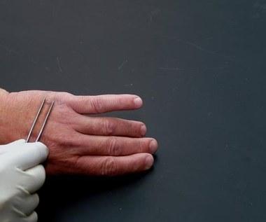 Czosnek – lekarstwo na brodawki