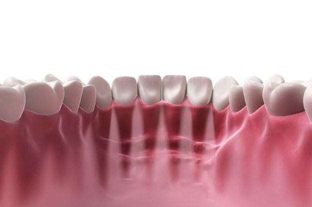 Czujniki umieszczane w jamie ustnej pomogą zdiagnozować choroby /123RF/PICSEL