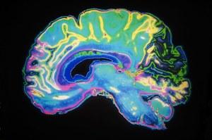 Czy chorobą Alzheimera można się zarazić?
