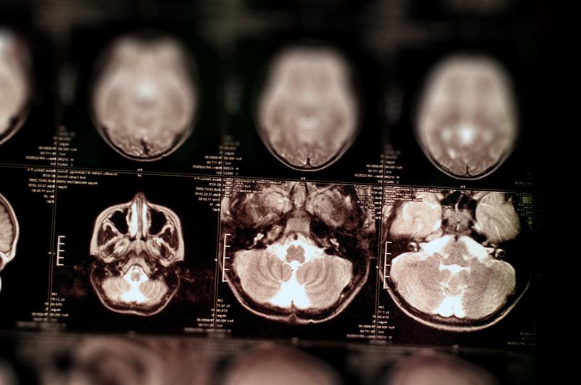 Czy glejaka mózgu da się pokonać? /123RF/PICSEL
