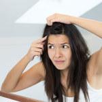 Czy jesteś narażona na rozwój łupieżu?
