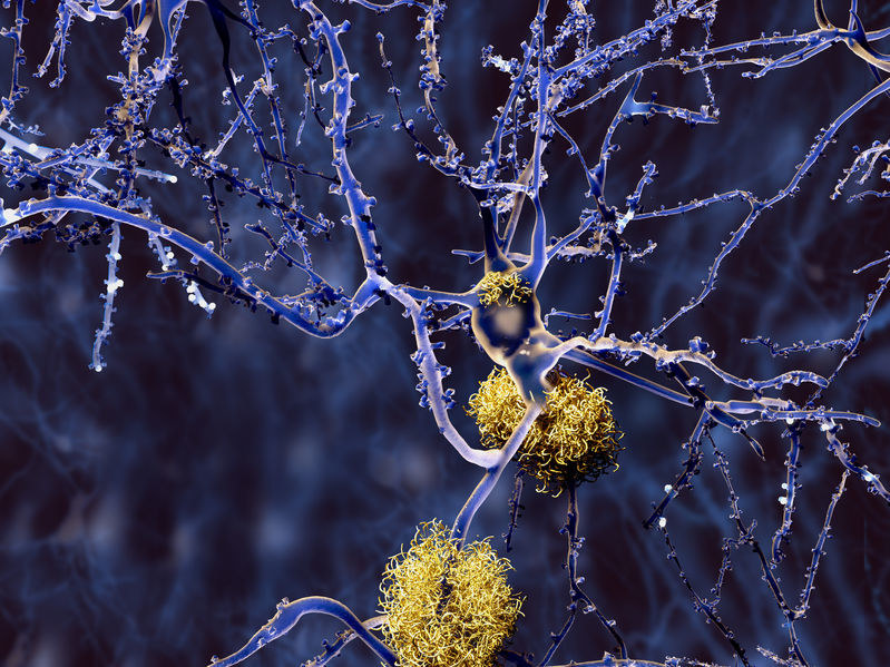 Czy jesteśmy coraz bliżej opracowania szczepionki na alzheimera? /123RF/PICSEL