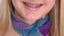Czy każdy może nosić aparat na zębach?