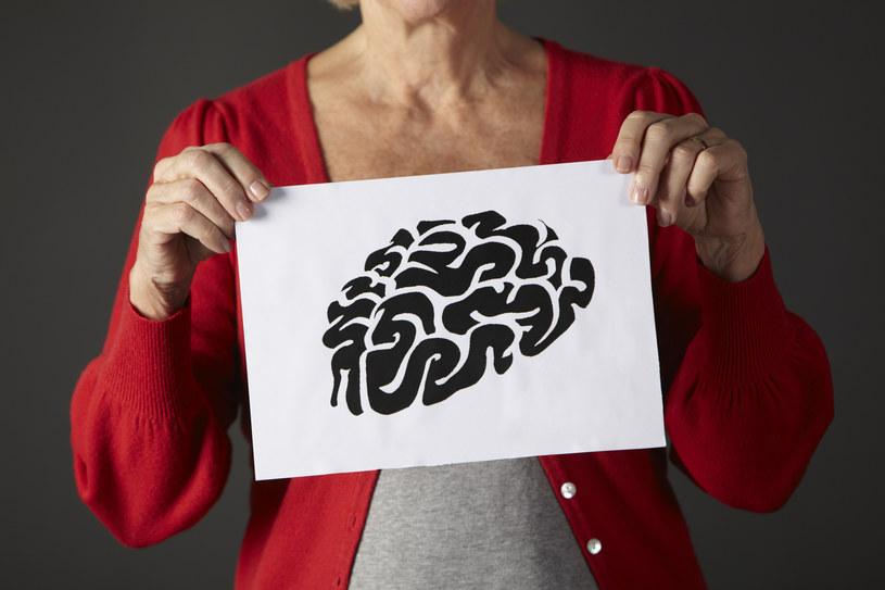 Czy kiedyś uda nam się wyleczyć chorobę Alzheimera? /© Glowimages
