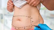 Czy liposukcja to droga na skróty?