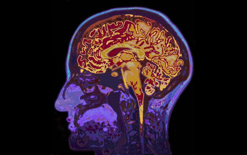 Czy mózg może produkować fruktozę? Zaskakujące wyniki badań /123RF/PICSEL