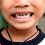 Czy mycie zębów przeciwdziała próchnicy?
