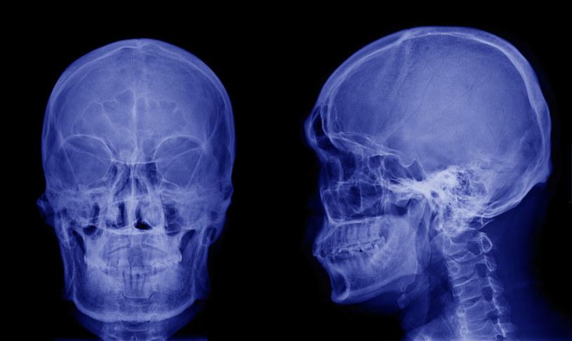 Czy terapia firmy Bioquark pozwoli ożywić martwy mózg? /123RF/PICSEL