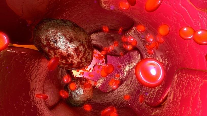 Czy to tłuszcz faktycznie pomaga komórkom nowotworowym się rozprzestrzeniać? /123RF/PICSEL