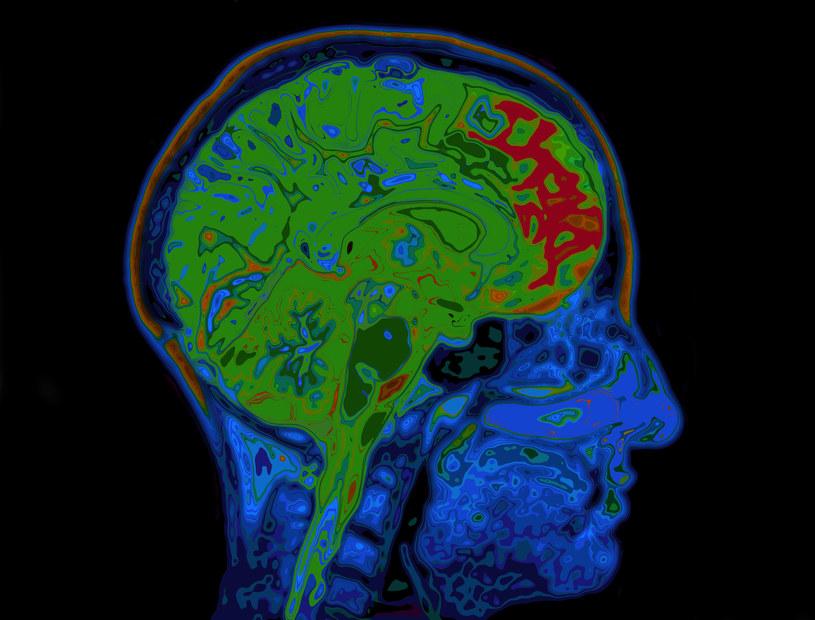 Czy u osób z COVID-19 mogą występować powikłania neurologiczne? /123RF/PICSEL