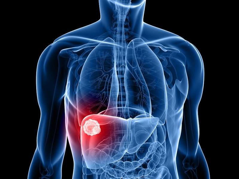 Czy w końcu uda się pokonać raka wątroby? /123RF/PICSEL