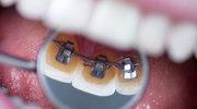 Czy warto po 40. zakładać aparat na zęby?