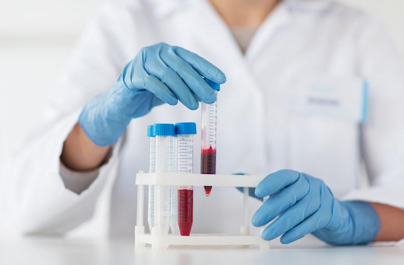 Czy wkrótce dzięki prostym testom krwi będzie możliwe poznanie płci nienarodzonego dziecka? /123RF/PICSEL