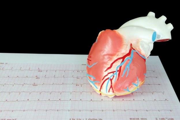 Czy wreszcie uda się wygrać z niewydolnością serca? /123RF/PICSEL