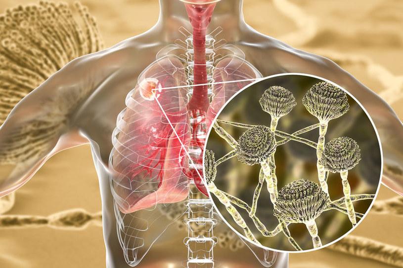 Czym jest grzybica płuc i jak się objawia? /©123RF/PICSEL