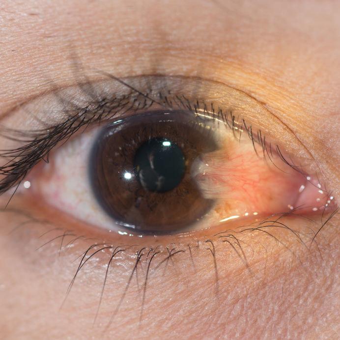 Czym jest skrzydlik i dlaczego powstaje na oku? /©123RF/PICSEL