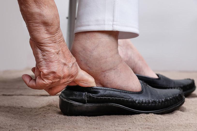Czym jest stopa cukrzycowa? /©123RF/PICSEL