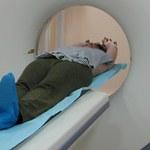 Darmowa tomografia płuc dla palaczy? Pomysł budzi kontrowersje