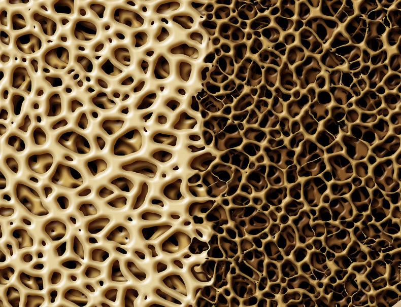 Demineralizacja kości /©123RF/PICSEL